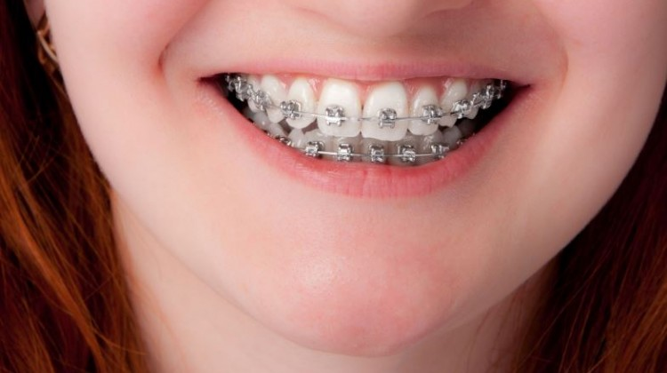 Twisted Teeth: 3 Reasons Your Children Need Orthodontic Treatment
