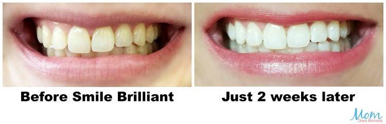 Smile Brilliant Boosts Confidence #MEGAChristmas17