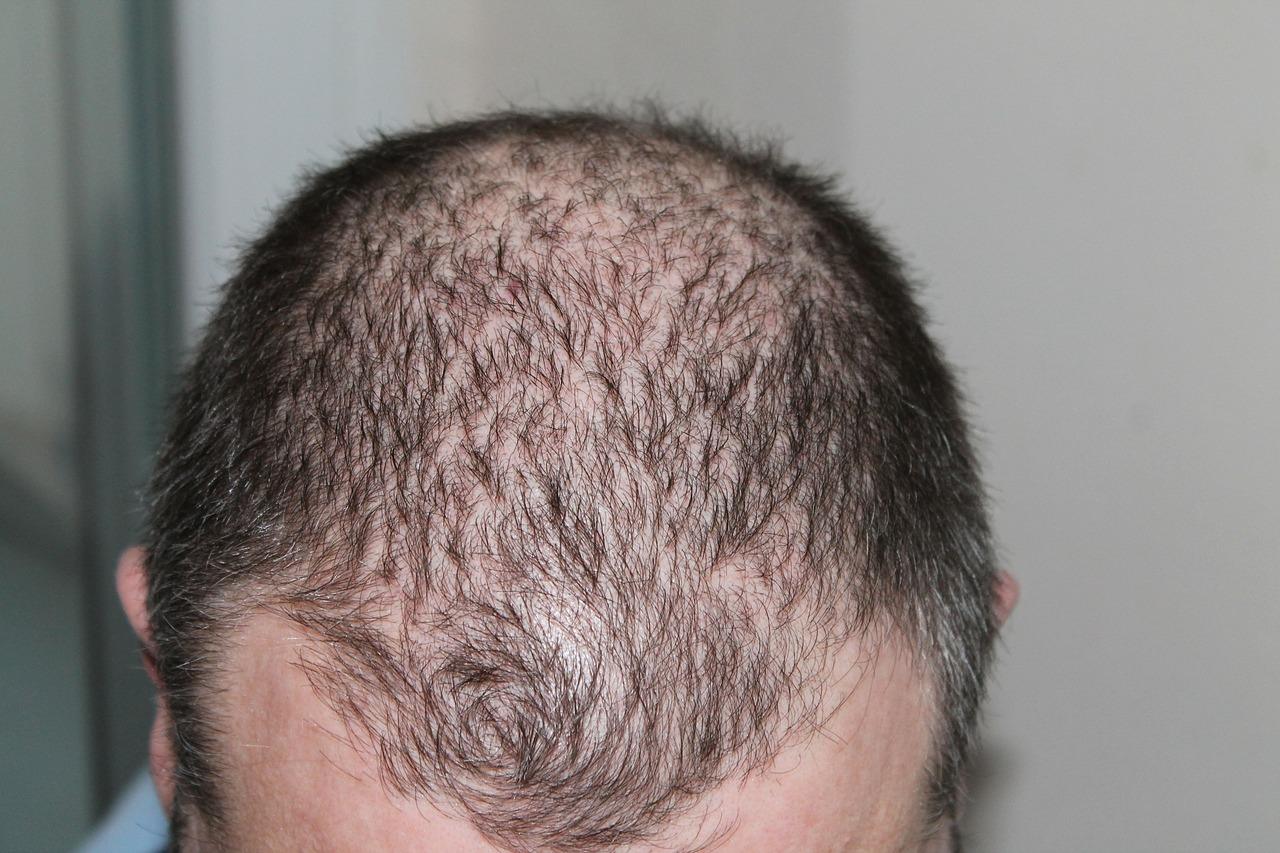 What to Expect from Restoring your Hair- Basic Aspects of a Hair Transplant