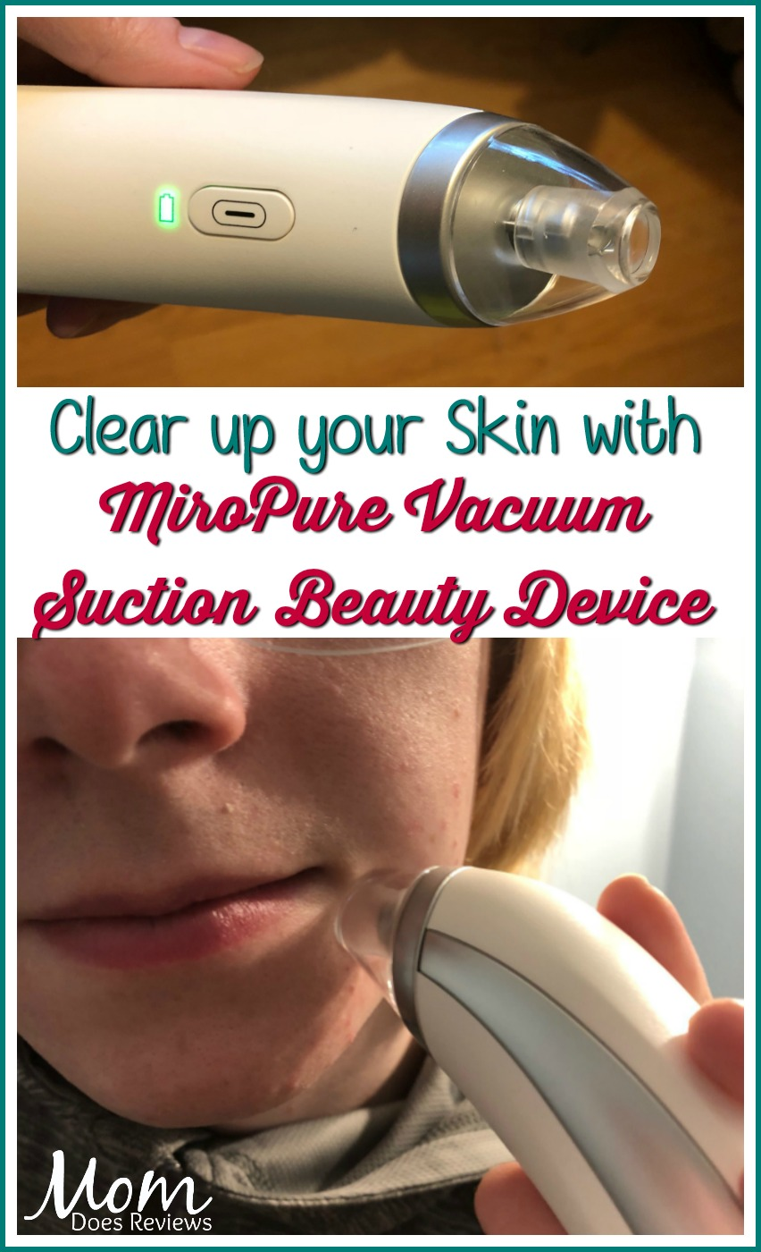 Clear up your Skin with MiroPure Vacuum Suction Beauty Device #MEGAChristmas18 #beauty #review #skincare