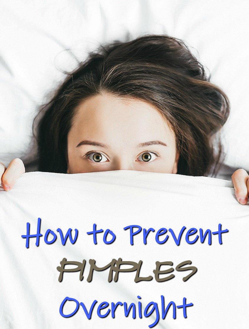 How to Prevent Pimples Overnight #skincare #beauty #pimples