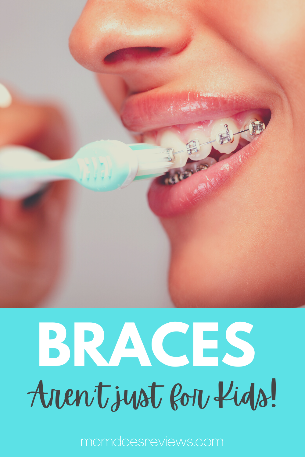 Braces Aren't Just for Kids